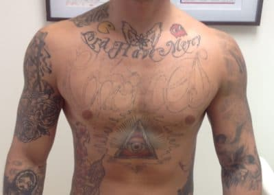 chest tattoo removal before and after photos