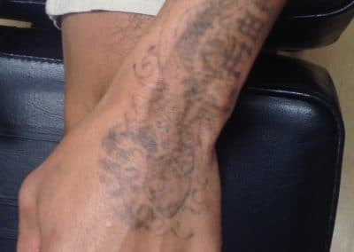 arm tattoo removal before and after photos