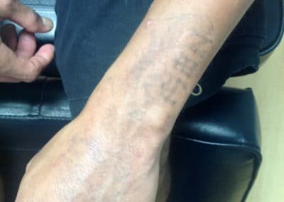 arm tattoo removal