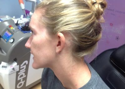 behind the ear tattoo removal before and after photos