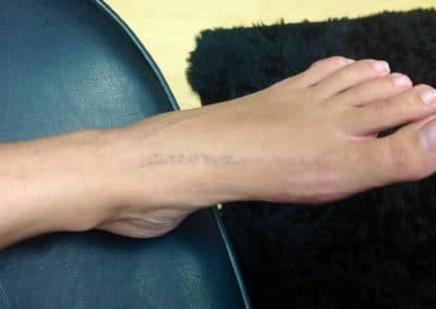 foot tattoo removal laser