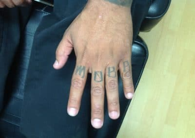 hand tattoo removal