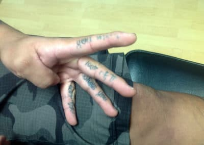 fingers tattoo removal before and after photos