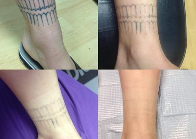 ankle tattoo removed