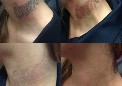 neck tattoo removal before and after photos