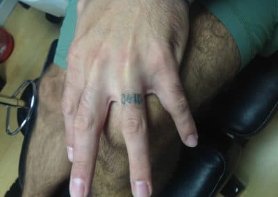 ring finger tattoo removal before and after photos