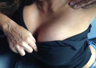 breast tattoo removal gone