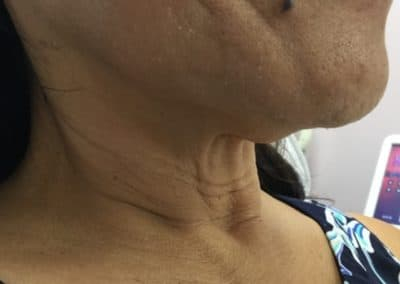 Ultherapy Neck Before After