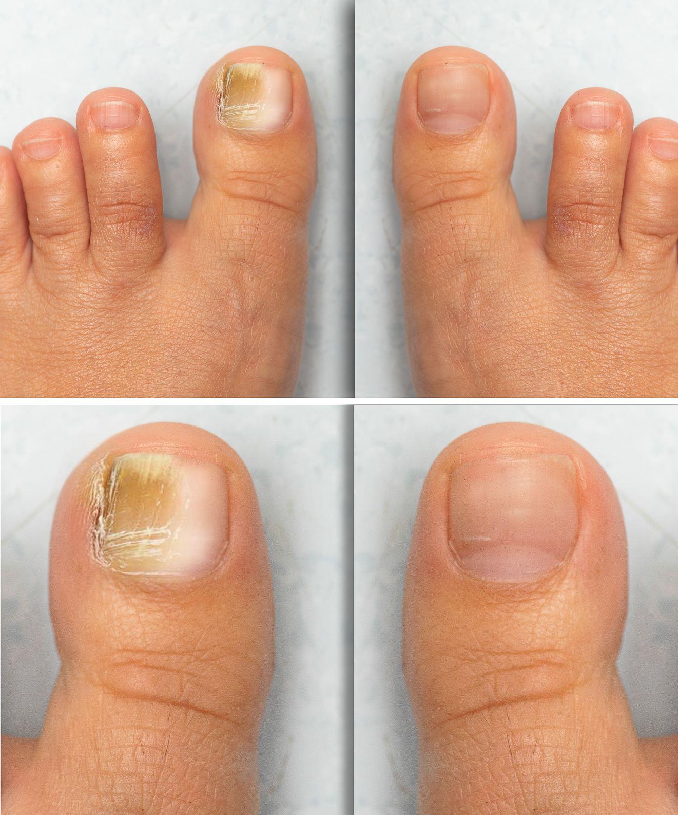 nail fungus infection Honolulu